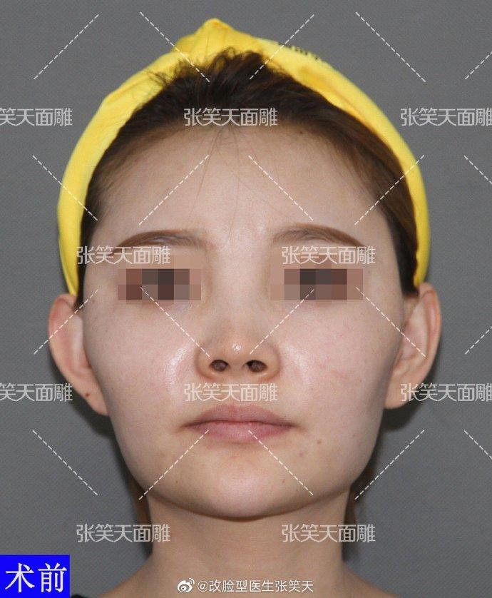 颧骨内推+下颌角手术案例