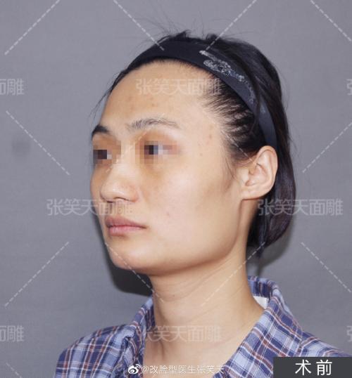 下颌角长曲线截骨术后4个月效果