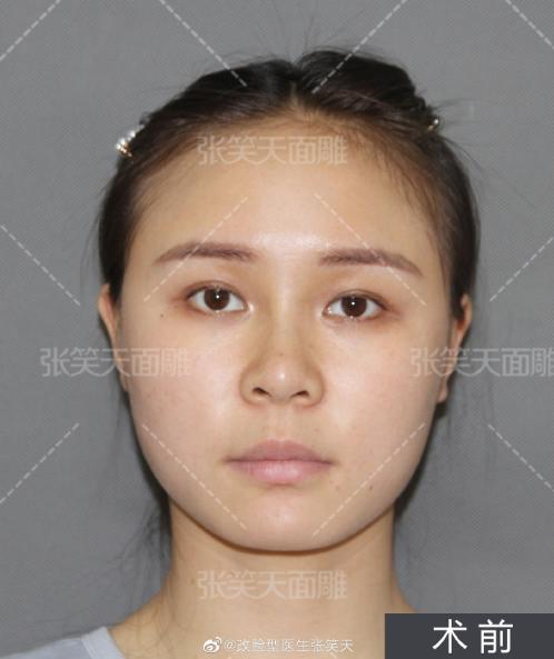 下颌角瘦脸术后2个月你能看的出效果吗?