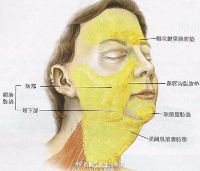 颧骨手术一定会导致皮肤松垂吗?