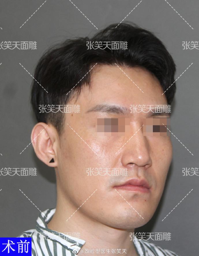 男生改脸型效果