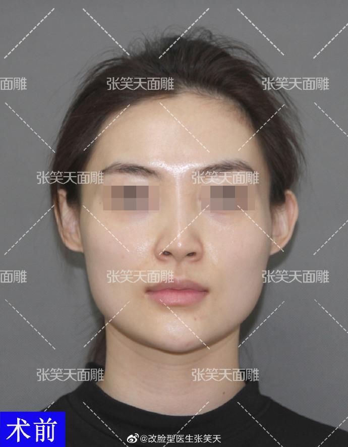 改脸型效果明显吗