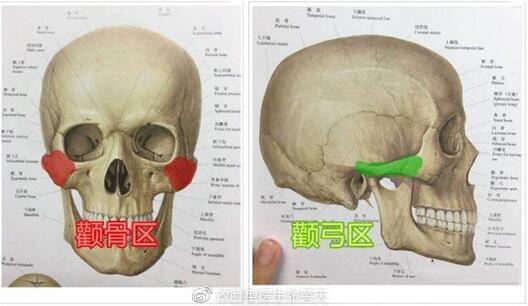 颧骨颧弓内推手术会有后遗症吗?怎么能避免?