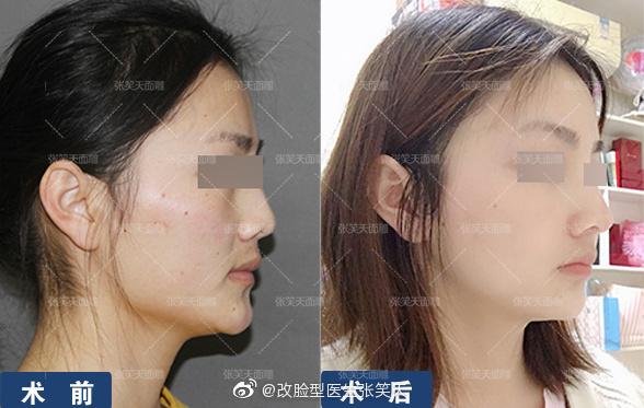 颧骨和下颌角一起做效果好吗?