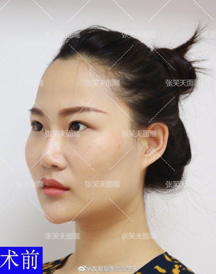 做改脸型手术能显年轻吗