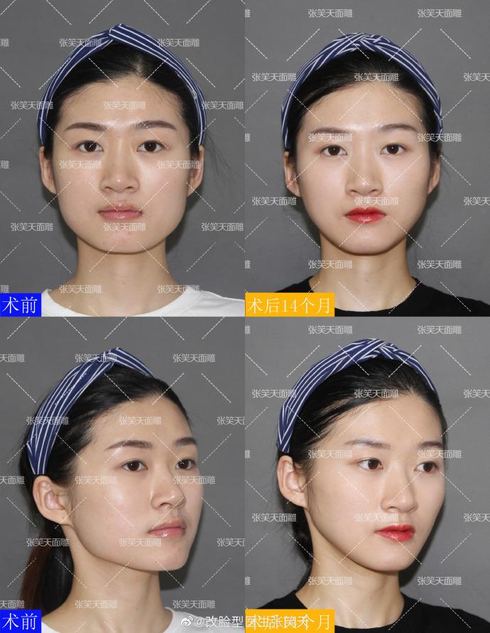 做下颌角瘦脸效果明显吗