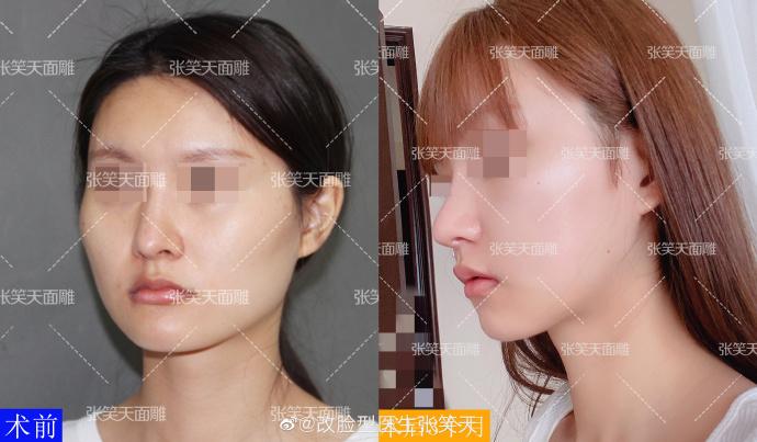 上下瘦脸术后三个月效果