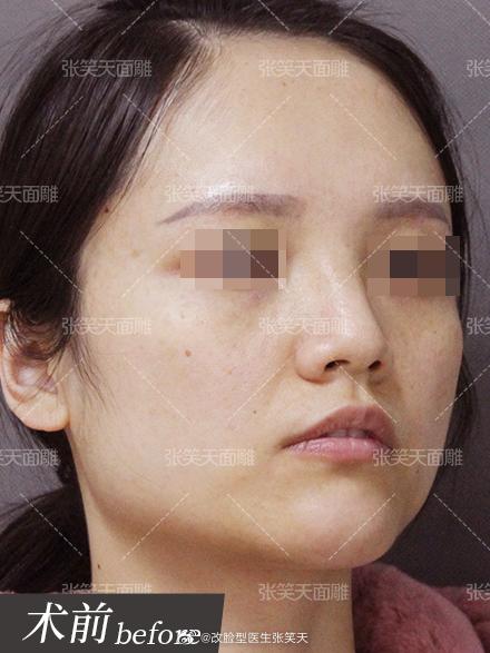 女生下颌角方大怎么办?怎么瘦小脸?