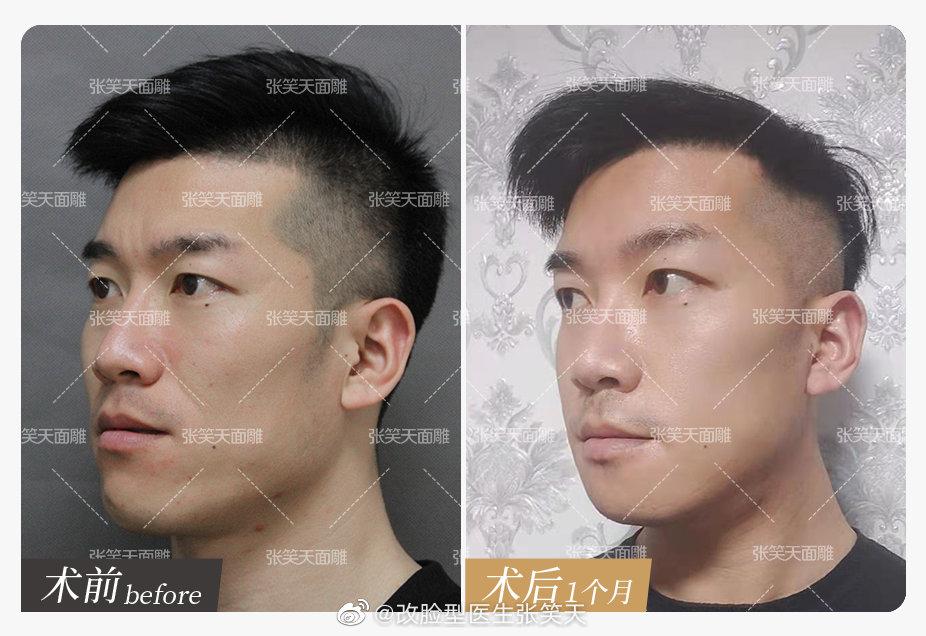 男生做下颌角手术好看吗?国字脸怎么改变?
