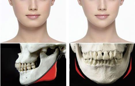 什么是磨骨、截骨手术?