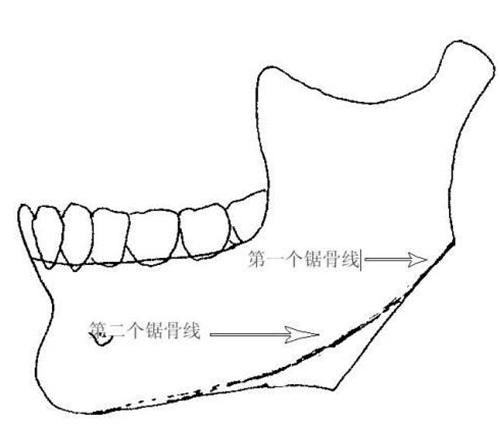 下颌角手术该留角还是不留角?
