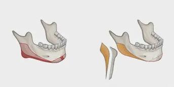加减平衡综合面雕之骨相、组织下垂减法