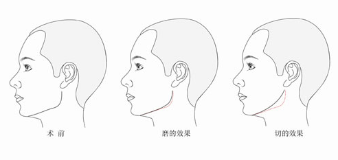 加减平衡综合面雕中皮肤下垂如何做减法