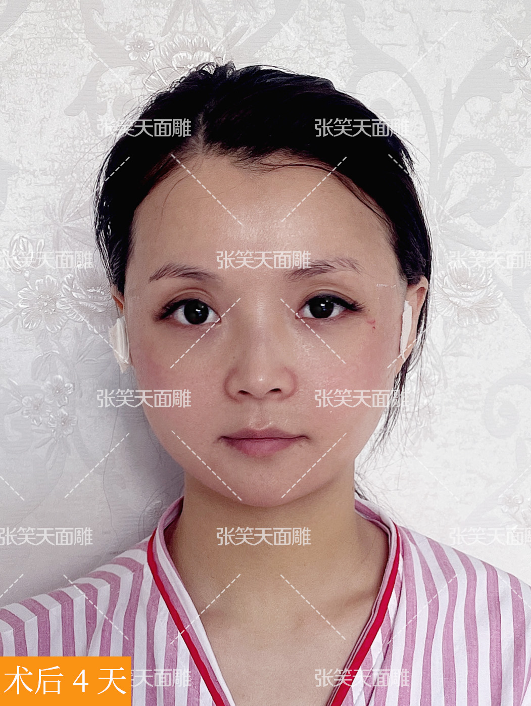 颧骨颧弓内推+超长曲线截骨,术后脸型柔和匀称了!